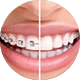 ORTHODONTIC-SERVICES